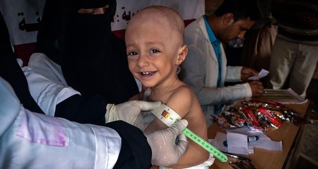 الأمم المتحدة: 20 مليون يمني يفتقرون للخدمات الصحية الأساسية